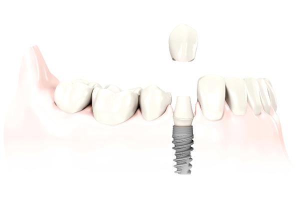 Cirugía oral - Implantes - Doctores Salinas