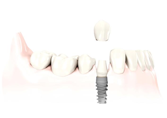 Implante de un solo diente